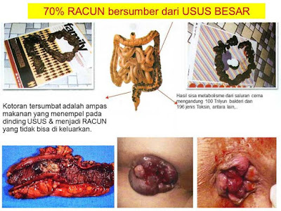 toxin usus