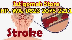 obat stroke ringan dan berat secara alami paling terbukti ampuh