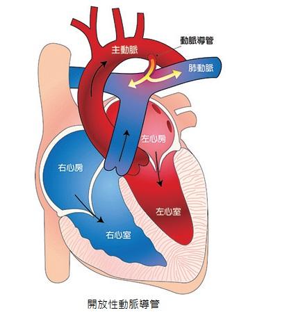 ~守護鋼鐵心~高雄長庚兒童心臟科: 開放性動脈導管