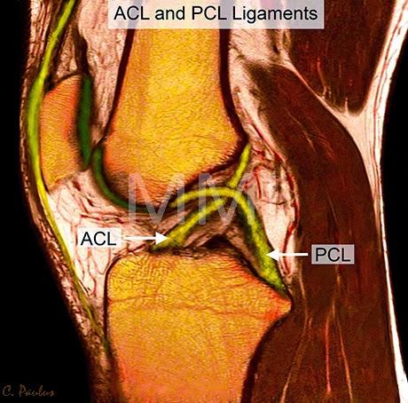 Medical Media Images Blog: New Color Knee MRI images created