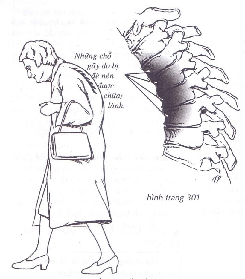 Loãng xương gây ra một loạt bệnh liên quan ở người già