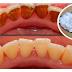 تخلص من جير الاسنان ورائحة الفم بمكون طبيعي واحد في أقل من أسبوع