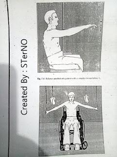Latihan ekstremitas atas pada penderita yang duduk di kursi roda