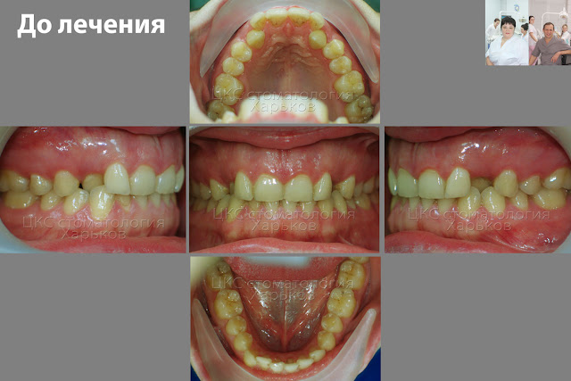 Зубы пациента до ортодонтического лечения