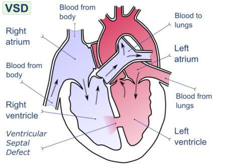 Solusi Atasi Penyakit Katup Jantung Selain Operasi