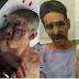 Extraña acusación contra policías hacen presuntos delincuentes lesionados