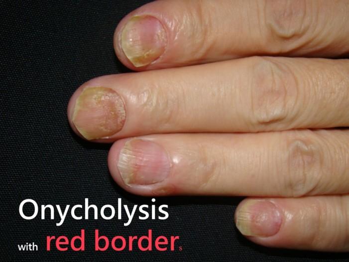 指甲乾癬-指甲分離(Onycholysis)