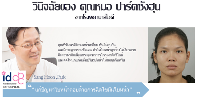 ตะลึง!! แพทย์เกาหลีชื่อดังจากรายการ Let Me In Thailand พลิกโฉมสาวหน้าเหลี่ยมให้เป็นสาวสุดมั่น จากหน้ามือเป็นหลังมือ!
