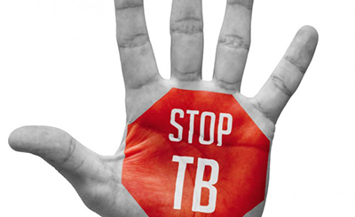 Cara Mencegah Penularan Dari Pasien Terjangkit TBC