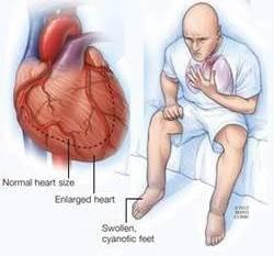 Obat Tradisional Penyakit Gagal Jantung