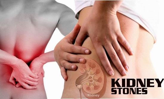 Bệnh sỏi thận và cách điều trị - 1