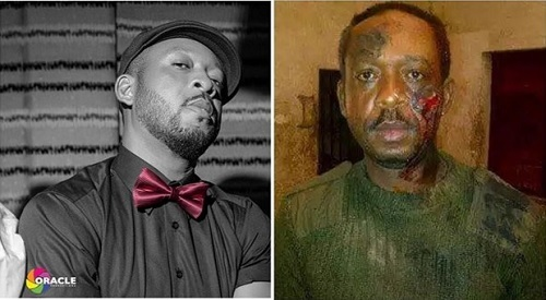 Nigerian Musician Brutalized for Wearing a Military Camouflage (Photo)