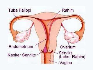 pengobatan kanker rahim stadium 2, jual obat alami kanker rahim stadium 3, obat alternatif untuk kanker rahim stadium 3