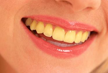 Cara Ampuh Memutihkan Gigi Kuning Dengan Cepat