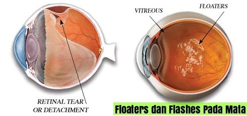 Cara Menghilangkan Floaters Pada Mata Tanpa Operasi