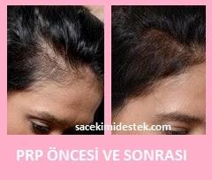 prp saç tedavisi yaptıranlar 12