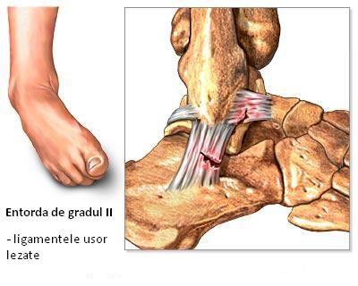 Tratamentul sportiv al osteocondrozei