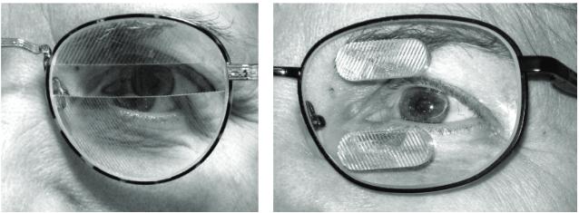 図:同名半盲用プリズムメガネ