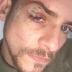 > Una brutal agresión a Alex Casademunt, de OT1, le desfigura la cara