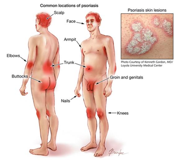 psoriasis scrotum treatment