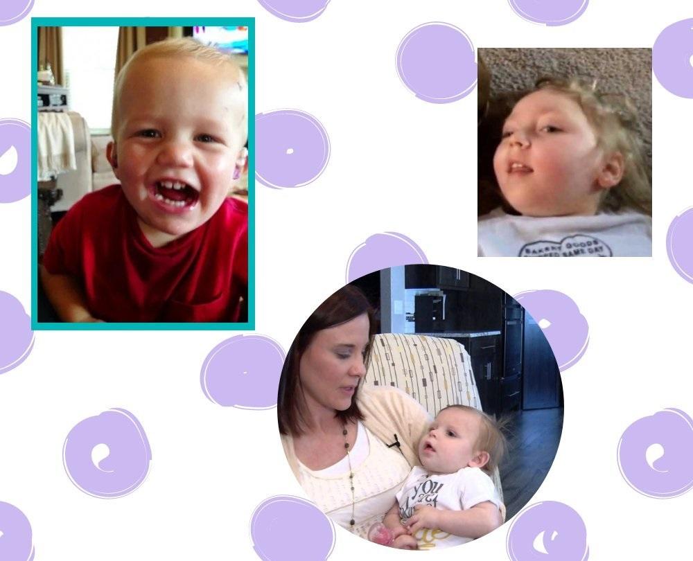 шизэнцефалия головного мозга у ребенка