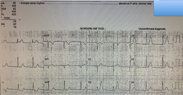 Does Ekg Miss Heart Problems In The Emergency Room