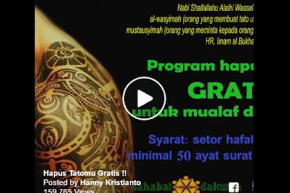 Alhamdulillah sekarang ada Program hapus tattoo GRATIS untuk mualaf dan muslim..