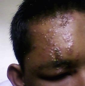 Herpes Zoaster Dan Pengobatannya