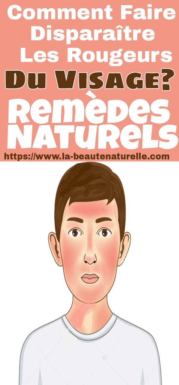 Comment faire disparaître les rougeurs du visage? remèdes naturels