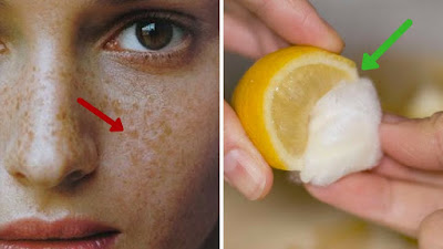 How To Get Rid Of Freckles (2 Steps)