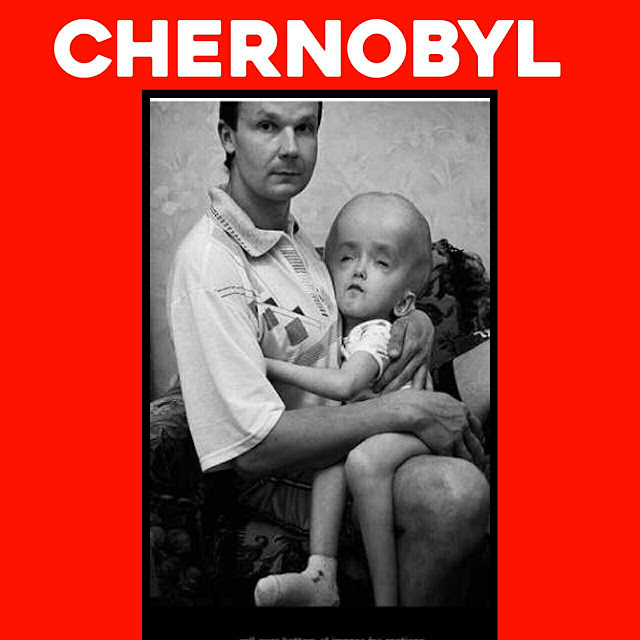 How Many People Died in Chernobyl?