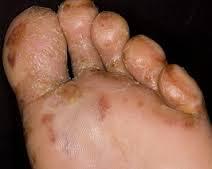 obat gatal eksim menahun di kaki paling ampuh