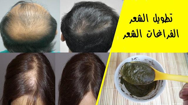 الوصفة التي اوصت بها كليوباترا ستجعل شعرك يطول بسرعة عجيبة وبدون توقف وتملأ في الفراغات الشعر