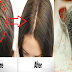 Powerful Hair Fall Treatment at Home That Is Surely Effective!