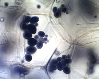 Amyloplasts of a potato tuber stained with iodine.
