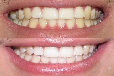 dientes blancos listerine whitening extreme