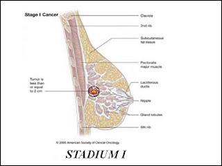Stadium I Kanker Payudara