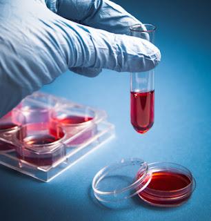 Hematologia Forense 1