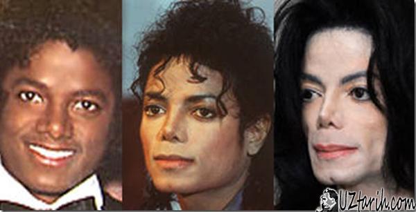 michael jackson, skin color
