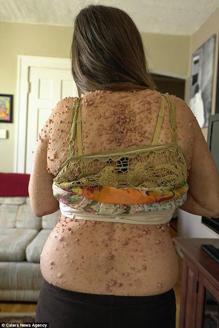 Mengerikan! Hampir 6 Ribu Tumor di Seluruh Tubuh, Permintaan Wanita Ini Bikin Kamu Terenyuh