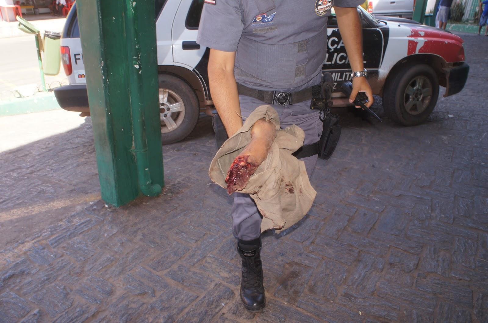 d5d3bea067d8f Ex-segurança da Ótica Maia teve braço decepado com um facão por invasor de  lotes