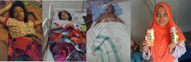 https://gamatq.blogspot.com/2019/03/obat-penyakit-lupus-100-alami-bisa.html