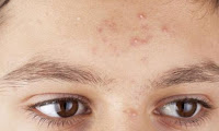 Foods That Cause Acne and Food to Help get rid of Acne