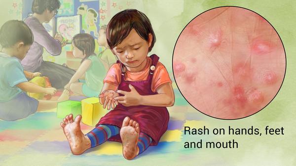 Mengenal Penyakit Flu Singapura Penyebab, Gejala, Pengobatan & Cara Pencegahan