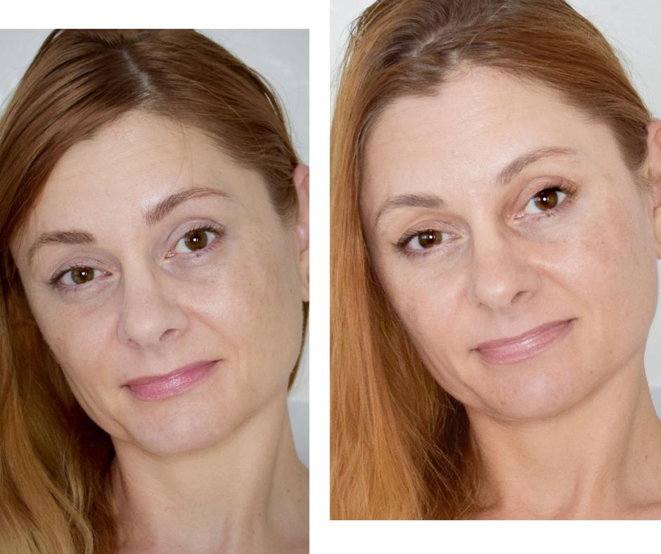 L'Oréal Paris Laser X3 Peel Pads Vorher Nachher im Vergleicht, Test