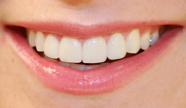2 Tips Rontokkan Karang Gigi dalam Sekejap