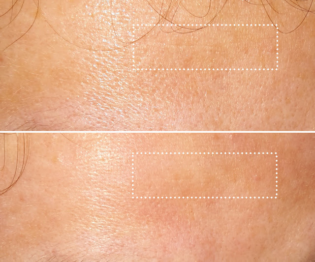 maska Visible Difference Peel and Reveal Revitalizing Mask pred a po použití