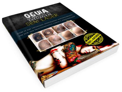 Guia de remoção de tatuagem