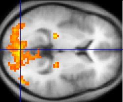 Accelerated Brain Gray Matter Loss in Fibromyalgia