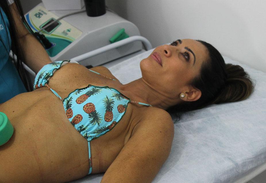 Scheila Carvalho realiza procedimento estético. Foto: Renato Cipriano/Divulgação